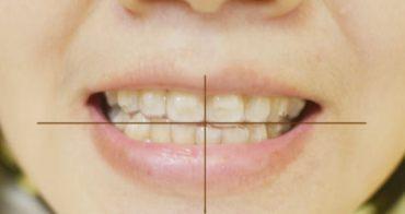 牙套日記(3) 年過30歲依然要矯正牙齒 SOV隱形牙套開箱