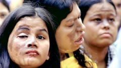 Des femmes victimes d'attaques à l'acide, au Bangladesh, qui manifestent à l'occasion de la Journée internationale de la femme, en 2004.