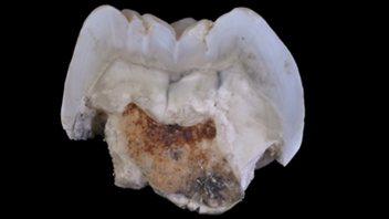 La troisième molaire supérieure droite d'un <i>Paranthropus robustus</i>.