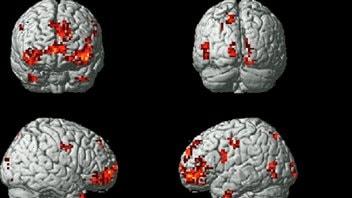 Le cerveau durant l'examen