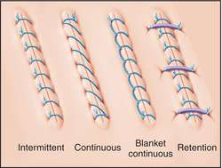 Image result for suture