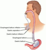 exerciții fizice în vene varicoase