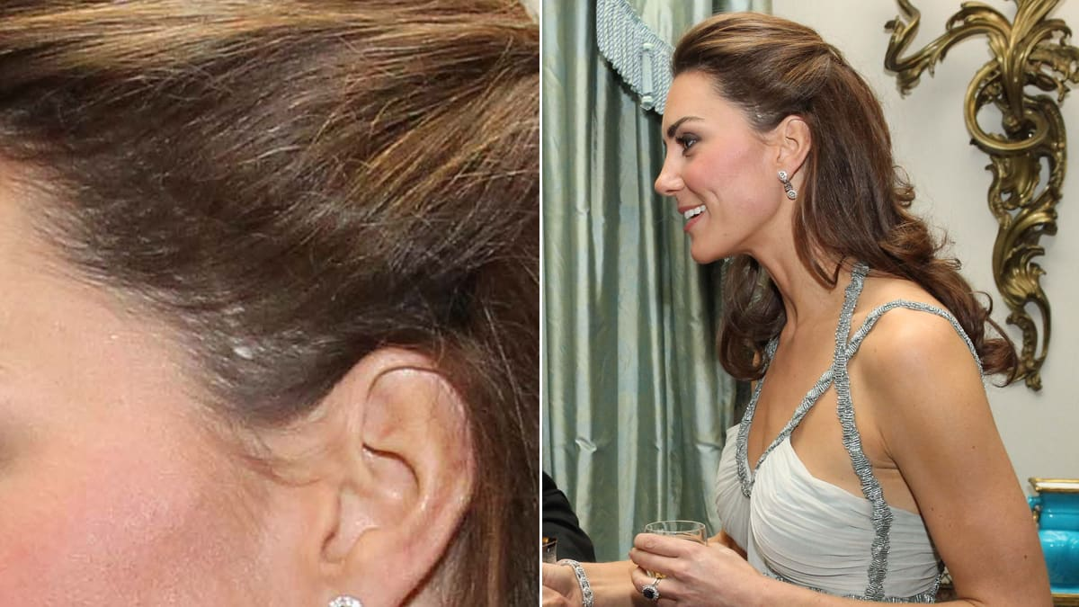 Stars With Scars Kate Middleton Tina Fey Amp More