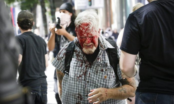 An unidentified protester injured by Antifa extremists at Pioneer Courthouse Square on June 29, 2019. (Moriah Ratner/Getty Images)