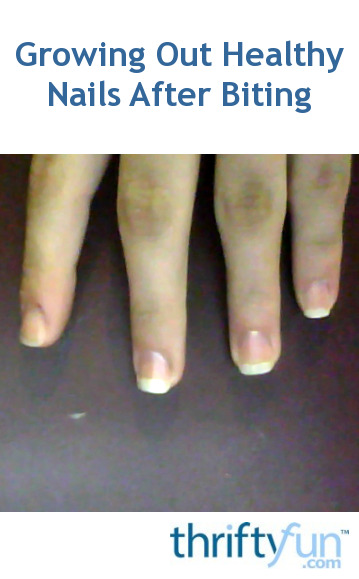 Growing Out Healthy Nails After Years Of Biting Thriftyfun