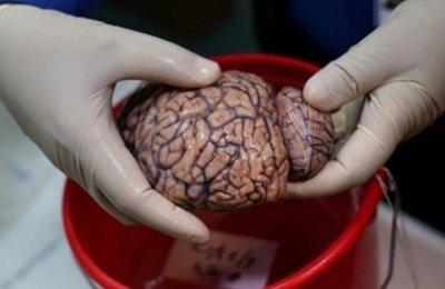 Binlerce beyin parçası burda inceleniyor!