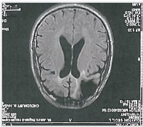 An image of Clayton's brain scan, included in his Supreme Court petition. (Courtesy of Clayton's attorneys.)