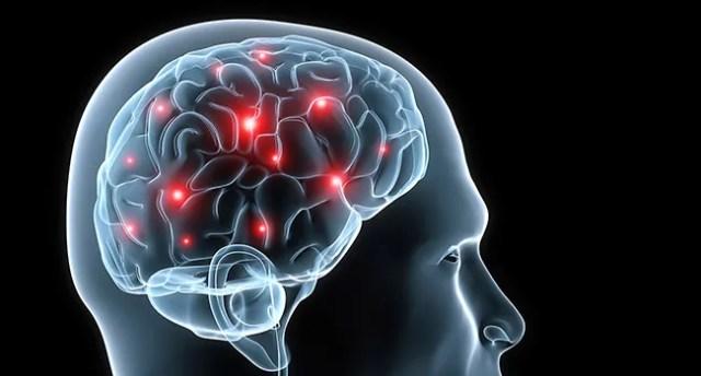 """Image result for epilepsy"""""""