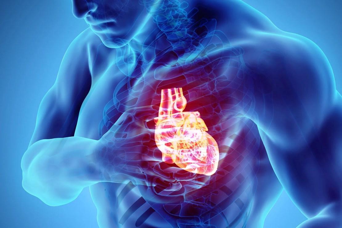 illustration of cardiac arrest