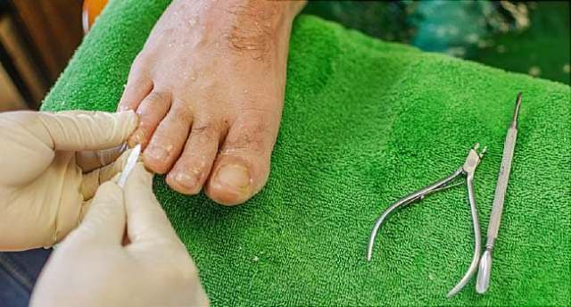 Image result for Toenail Discoloration, Fungus & Treatments