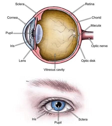 Acute Angle Closure Glaucoma: Causes, Symptoms, Treatment