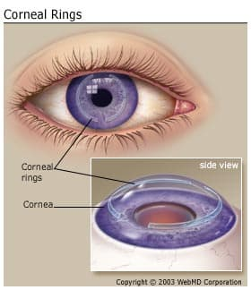 what conditions damage the cornea