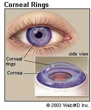 Image result for cornea of the eye
