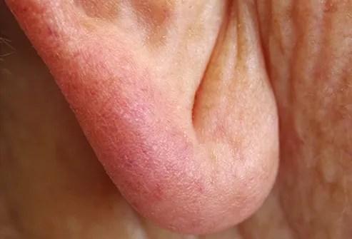 earlobe crease