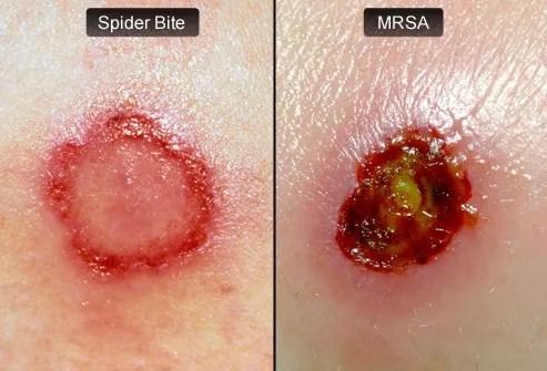 spider bite versus MRSA