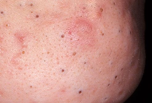 Close up of blackheads
