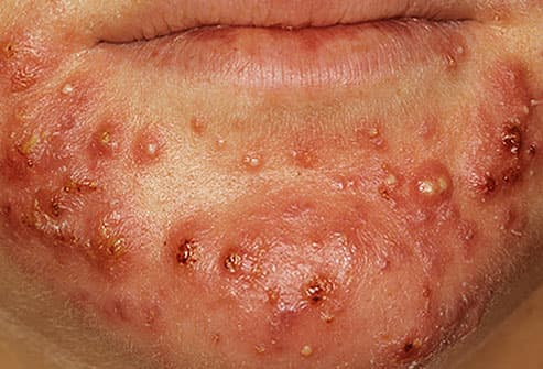 Close up of severe acne