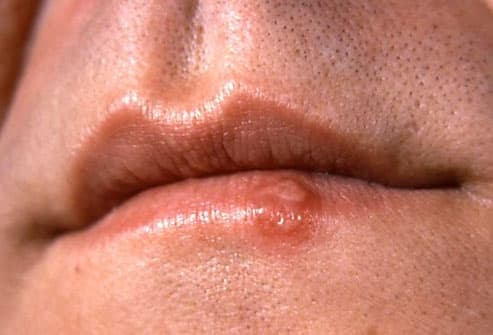 Image result for Cold sore