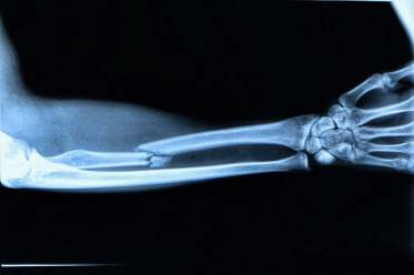 photo of broken arm xray