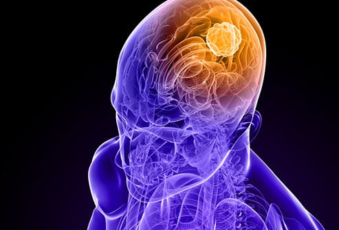 brain cancer illustration