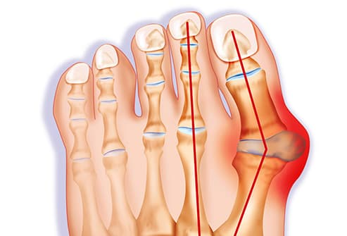 Bunion Pictures: Causes & treatments