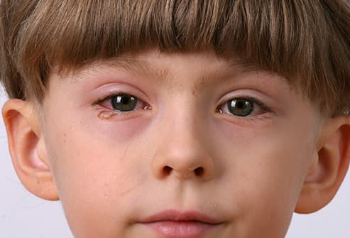 eye problem pictures farsightedness nearsightedness cataracts and more