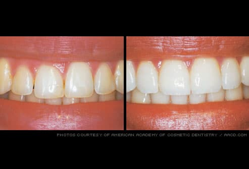 uneven gum line refined by gum reshaping
