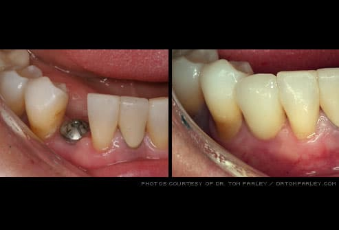 safety cap on dental implant and replacement crown