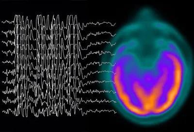 Image result for epilepsy