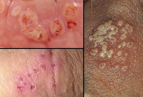 Herpes? Cysts? Yeast Infection? Help!? 2