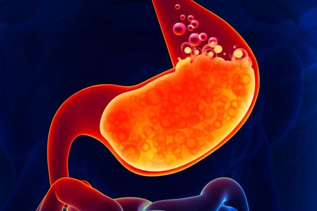 illustration of stomach acid