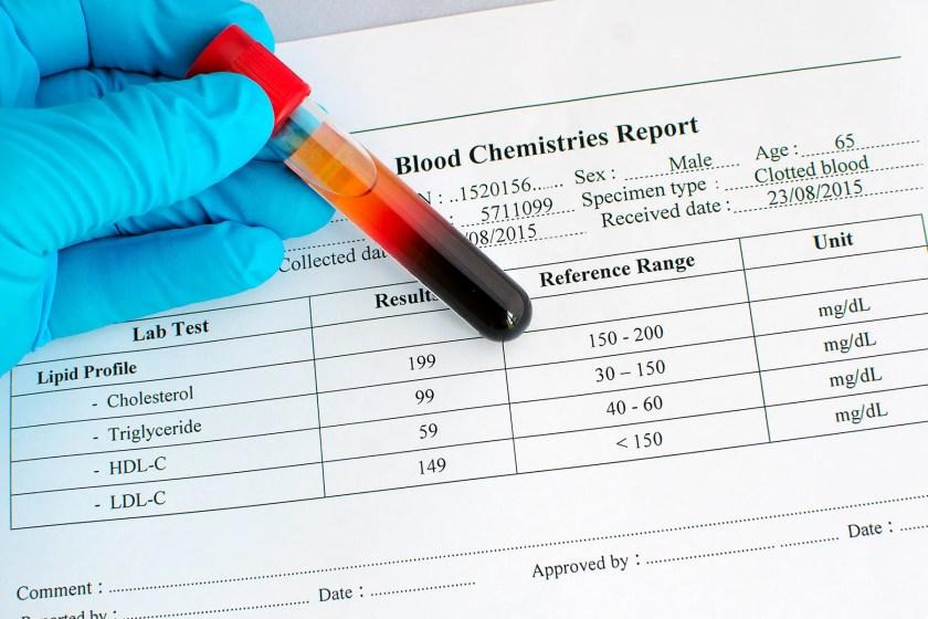 cholesterol test
