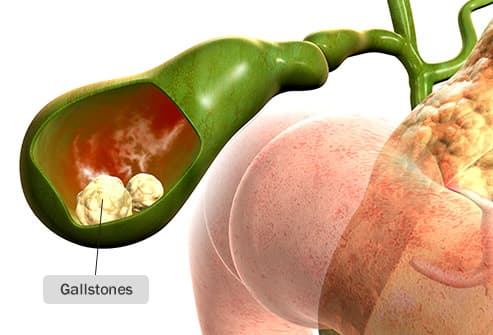 gallstones illustration