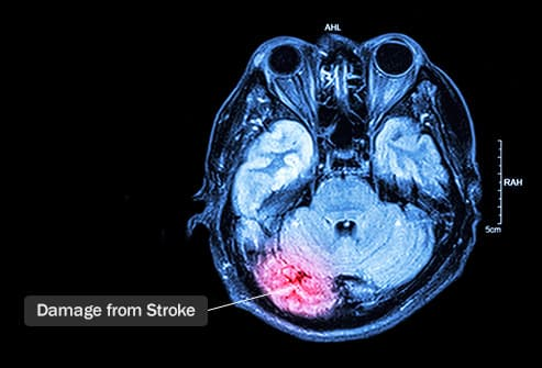 mri showing brain damage from stroke