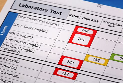 cholesterol test results
