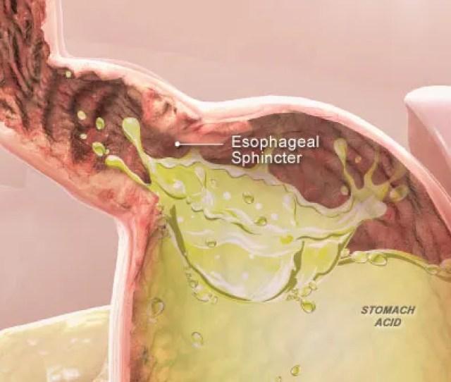 D Medical Illustration Of Acid Reflux