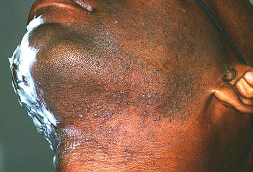 folliculitis on mans neck