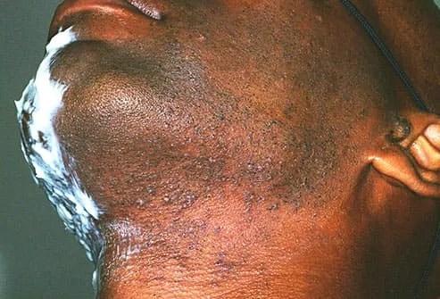 folliculitis on mans neck