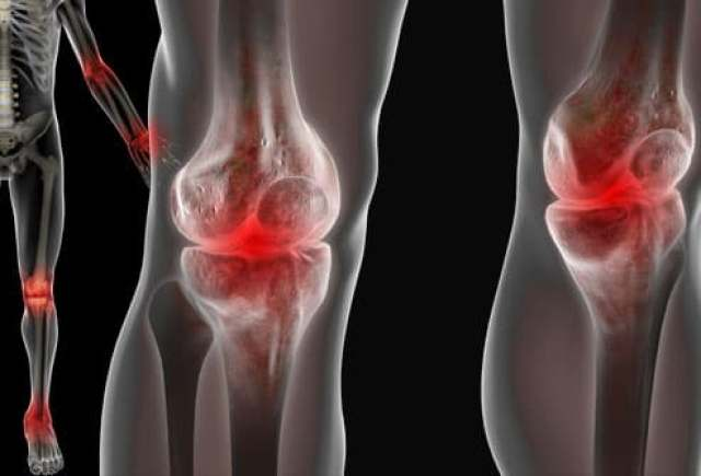 Lupus Attacking Joints