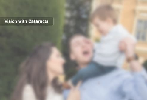 blurred vision with cataracts