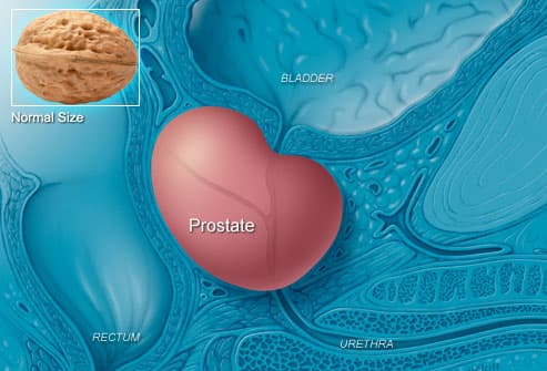 Illustration Of Enlarged Prostate