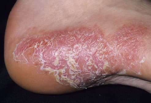 psoriasis on heel