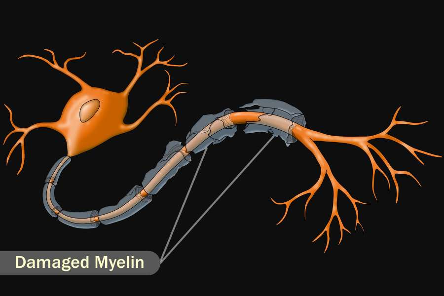 illustration of damaged myelin
