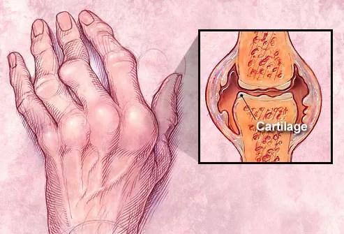 Hand with swollen, arthritic knuckles
