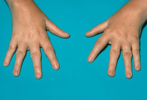 child's hands with juvenile rheumatoid arthritis