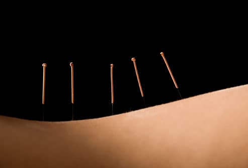 Acupuncture for sciatica relief