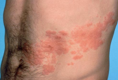 Anyone Ever Have Shingles(rash)? 1