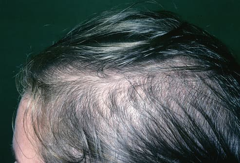 pictures of what your hair and scalp say about your health dandruff brittle hair and more