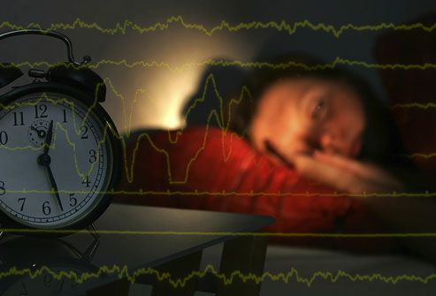 Disrupted Sleep Cycle - How Serious are Your Sleep Troubles?