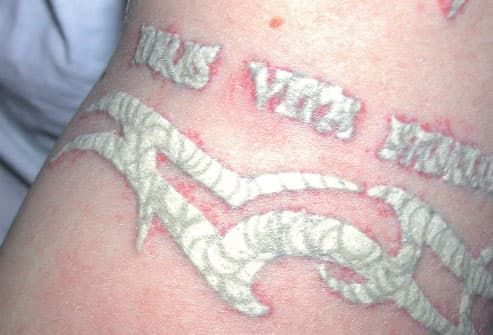Tissue Whitening After Laser Tattoo Treatment